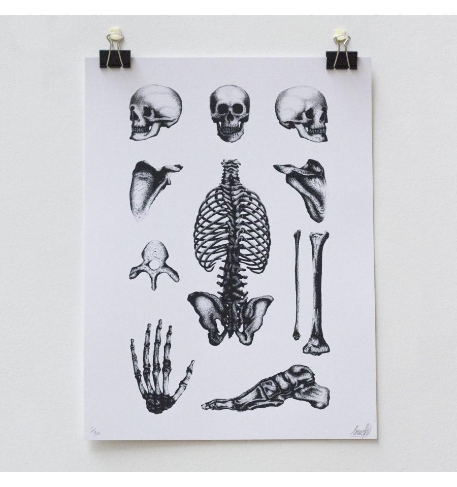 louis lps bones plate